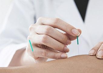 Akupunktur: Zayıflamanın en ananesel usulü
