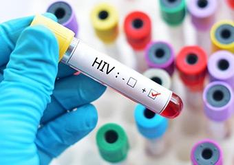 Her 4 AIDS'liden 3'namın haberi yok
