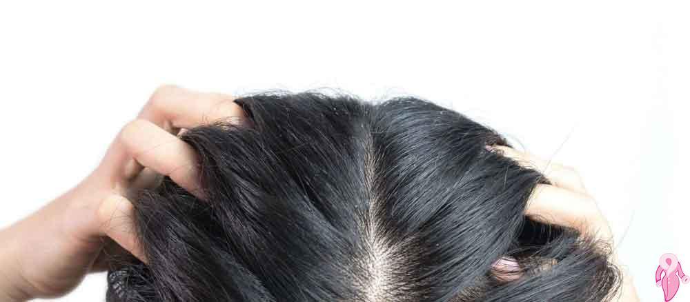 Seboreik Dermatit Nedir Tedavisi Var Mıdır?