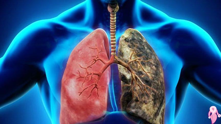 Akciğer Kanserinin İlk Bulguları Nelerdir, Nasıl Anlaşılır?