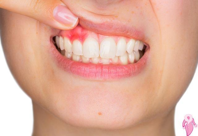Diş Eti Çekilmesinin Nebatsal Rehabilitasyonu, Natürel Çözümü