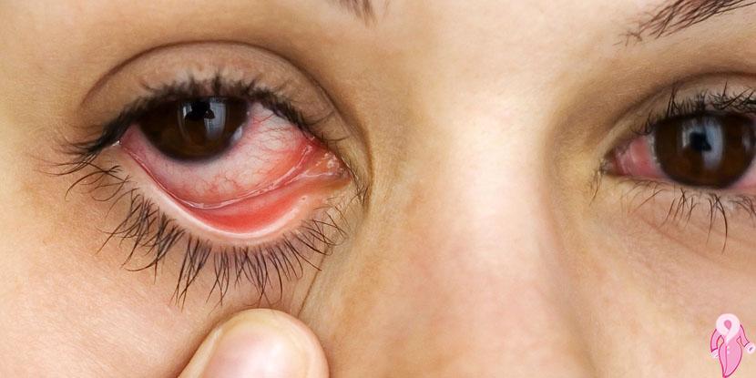 Göz Kuruluğunun Nebatsal Rehabilitasyonu, Natürel Çözümü