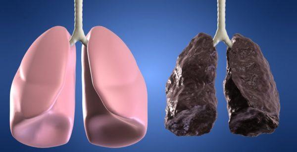 Akciğer Kanserinin İlk 5 Belirtisi Ve Ölüm Belirtileri - 4
