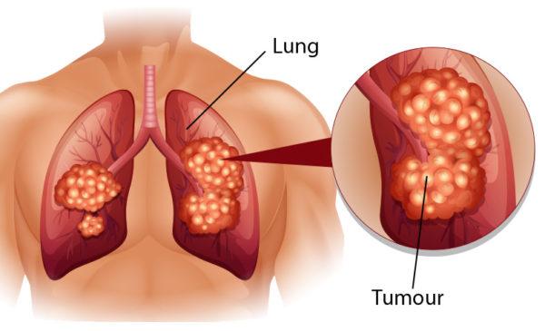 Akciğer Kanserinin İlk 5 Belirtisi Ve Ölüm Belirtileri - 5