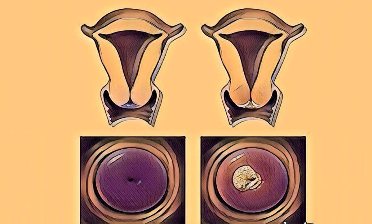 Rahim Ağzı Kanseri Belirtileri Nelerdir? | 3