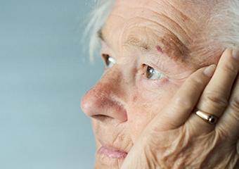 Demans hastalığında erken tanı ehemmiyetli