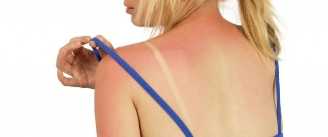 Cildinizdeki sorun yanık mı alerji mi?