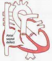 Atrial Septal Defekt