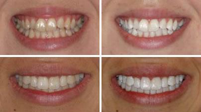 Diş beyazlatma usulleri